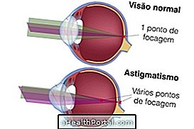 hogyan lehet helyreállítani az öregségi látást