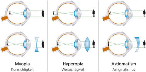 myopia astigmatizmus ahonnan a látás tisztasága elvész