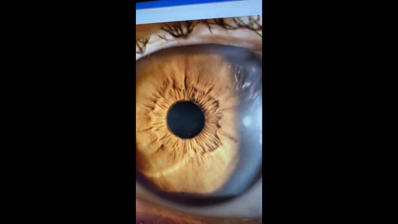 torna a látás hiperopiájának javítására
