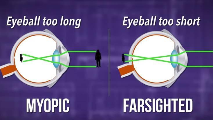 A szemek fénytörési hibái