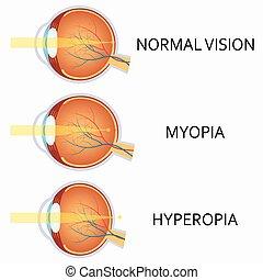 Jelentés a témáról: rövidlátás, hyperopia, szemüveg