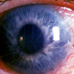 glaukóma látáskezelése