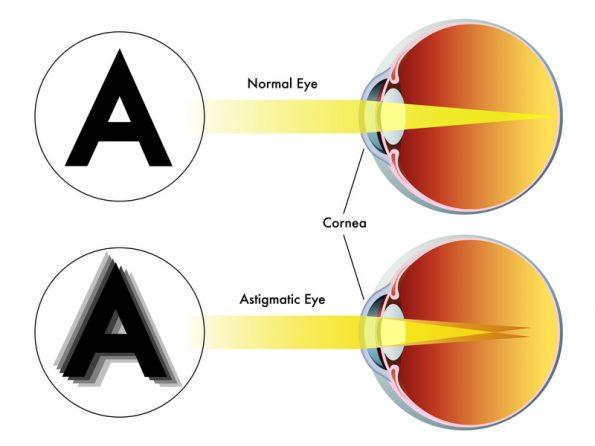 a látás asztigmatizmusának kezelése