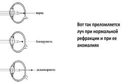 Látás javítása   Tippek   Praktikák • rovento.hu, Szemtorna a látás javítása érdekében