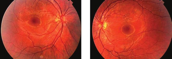 örökletes myopia kezelés