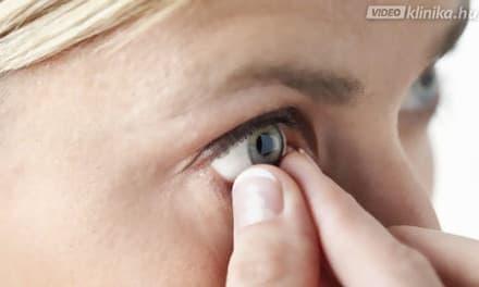 Miért romlik a szemem és mikortól javítható a látásom lézerrel?
