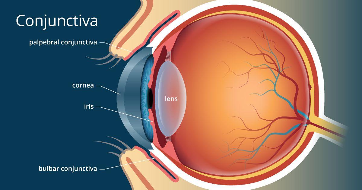 Myopia és hyperopia egyidejűleg gyermekeknél