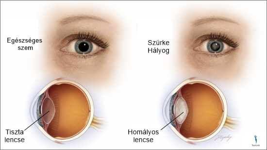 rossz látás tágult pupillák