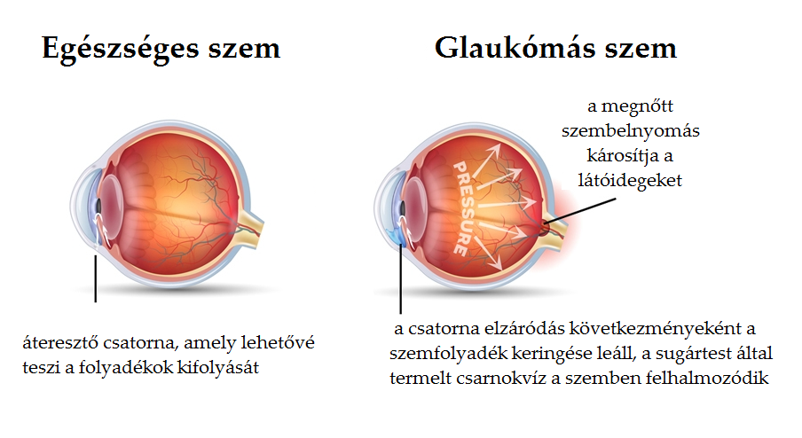 homályos látás glaukómával