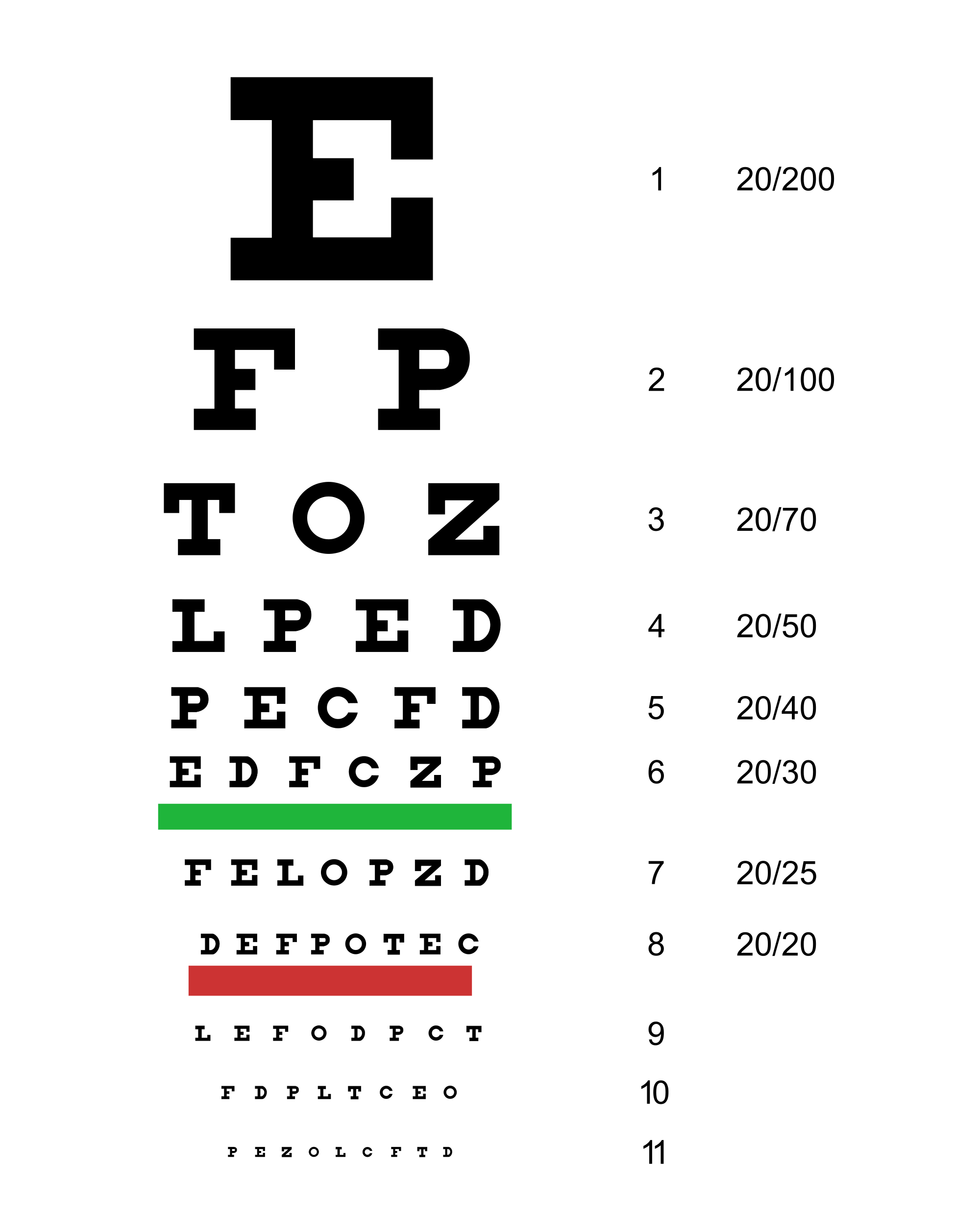 a látásélesség csökkenése idős korban