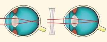 látás rövidlátó asztigmatizmus könny és látás