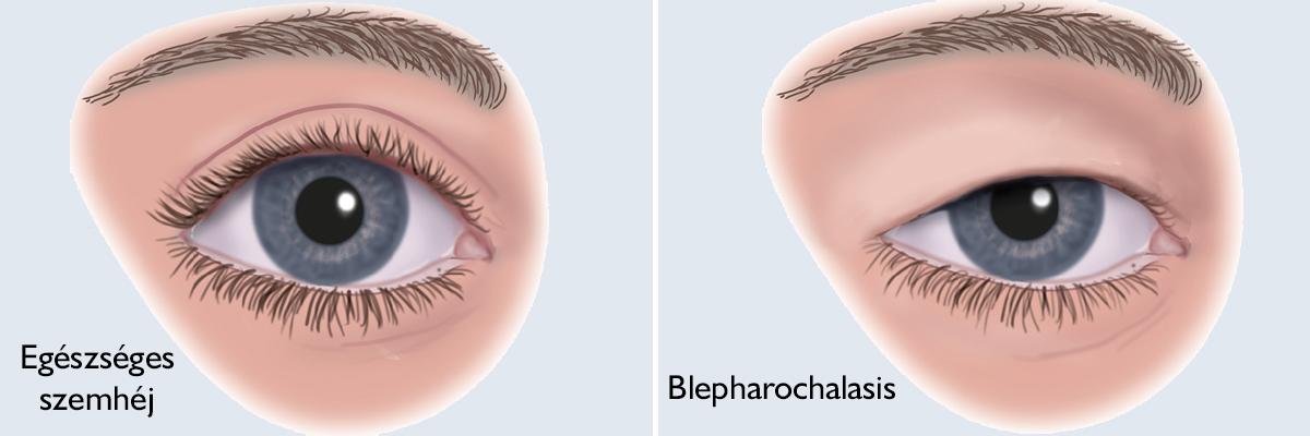 A szemhéj cisztáinak kezelésére szolgáló módszerek - Megelőzés