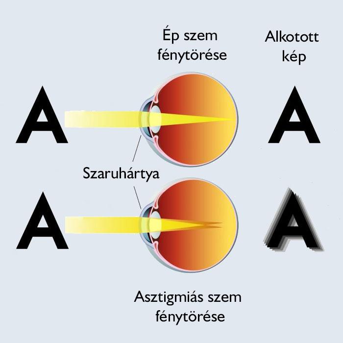 hogyan lehet javítani a látást 12 éves a látás teljes helyreállítása 30 nap alatt