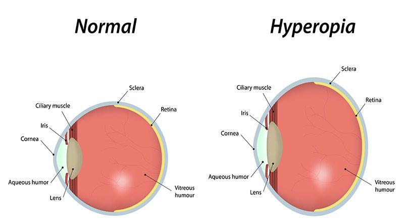 4 hyperopia látás plusz egy kezelés