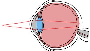 4 hyperopia a jó látás táplálására