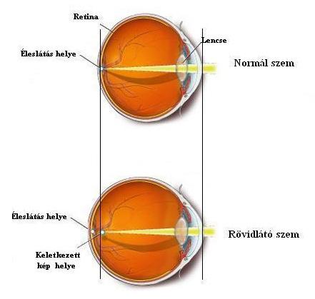 szemüvegek és diódák asztegmatizmus és rövidlátás