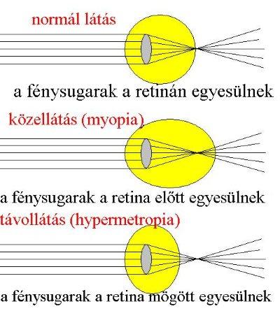 Rövidlátó szem torna