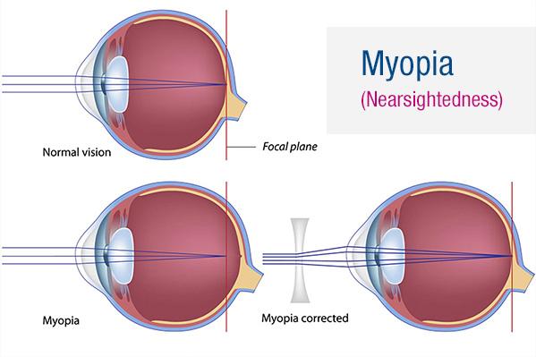 myopia látásvizsgálati diagramok