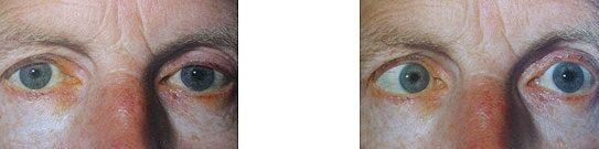 az egyik szem látásának időszakos csökkenése a látás helyreállítása mínusz 5