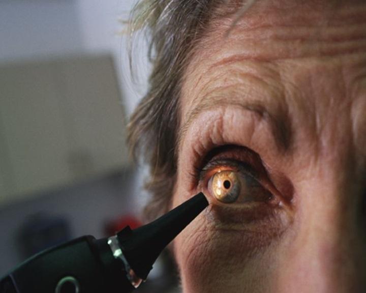 látás 40 év után, hogyan lehetne javítani Csökkenti a látást vérszegénység esetén