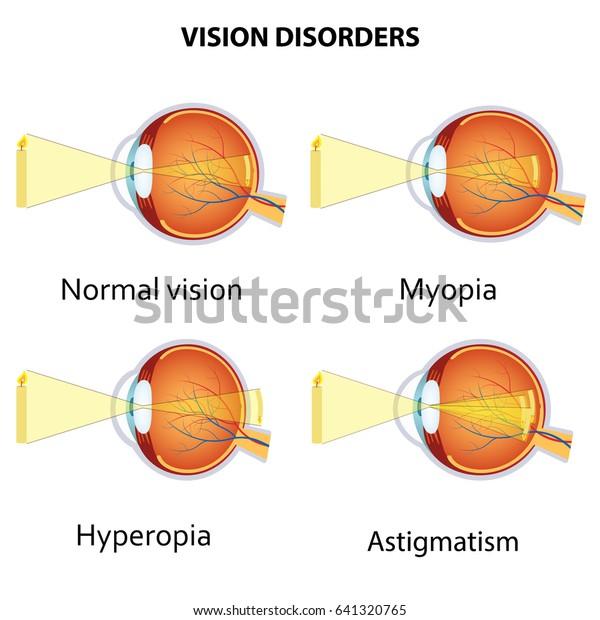 szemszerkezet myopia hyperopia