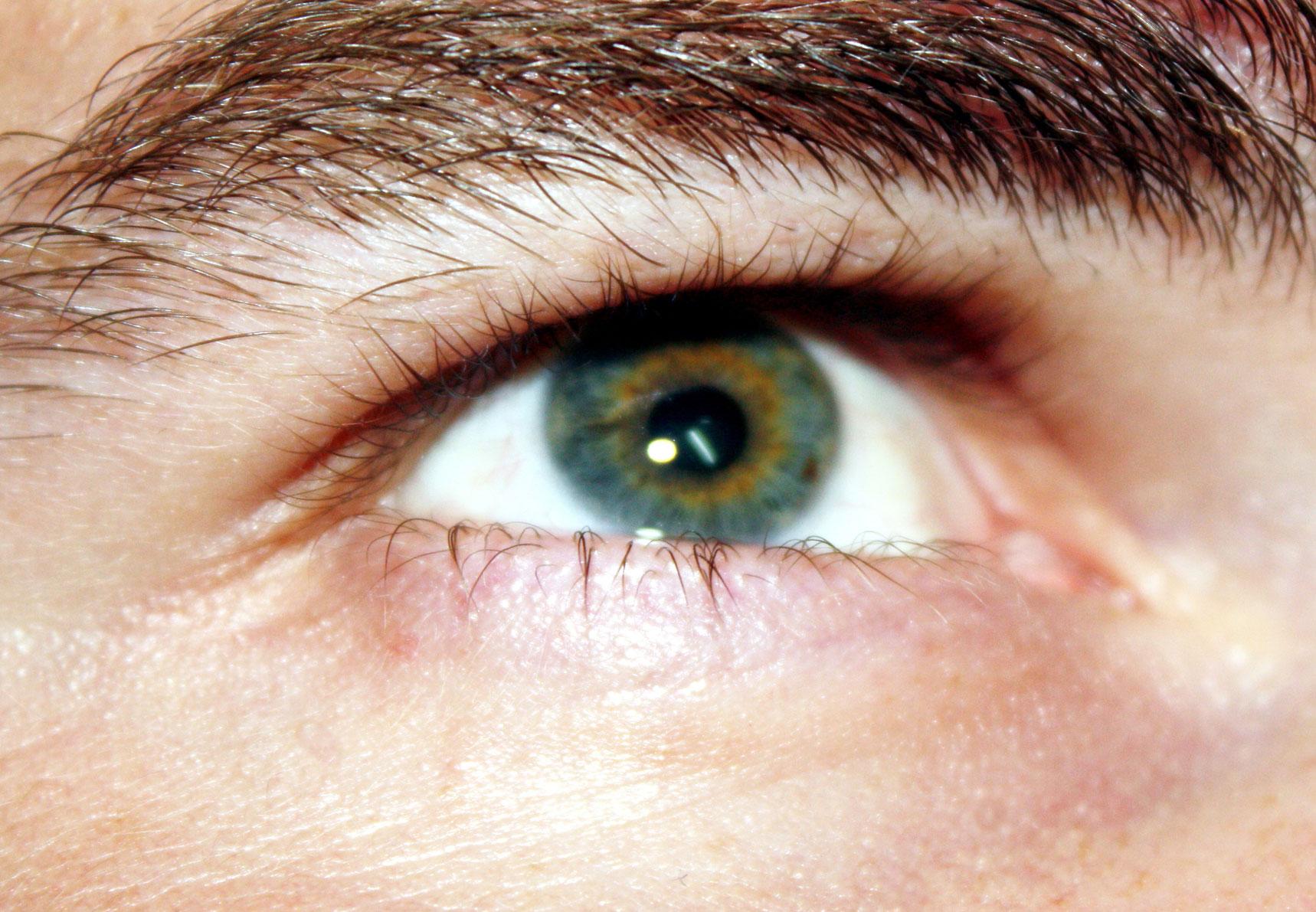 vak műtét a látás helyreállítására