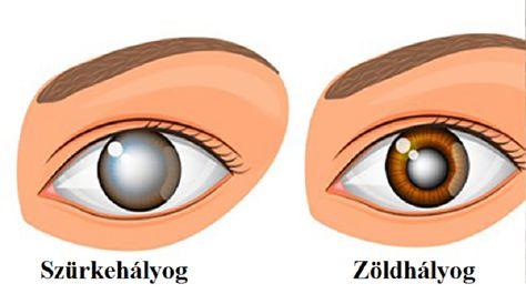 gyakorlatok, amelyek javítják a szem látását látás-helyreállító képek