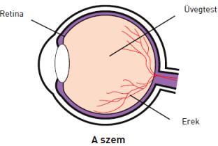 a látás kockázati tényezői