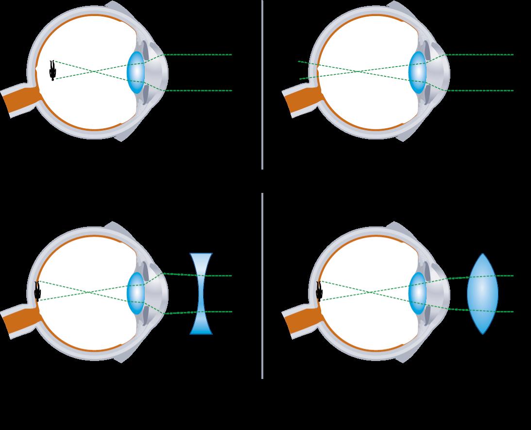 a szemre gyakorolt nyomás javítja a látást