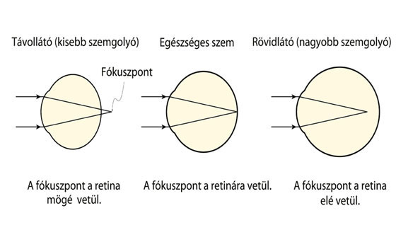 Vera Brežnev gyenge látás