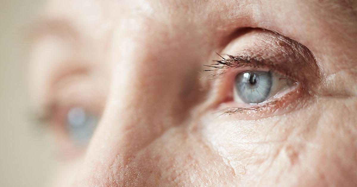miért romlik a látás felnőtteknél