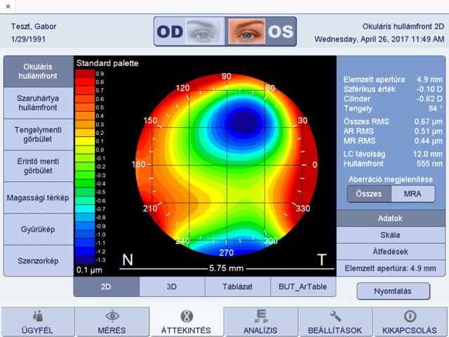 a vezető látásélesség-tesztje optikai szempontból színes lencsék