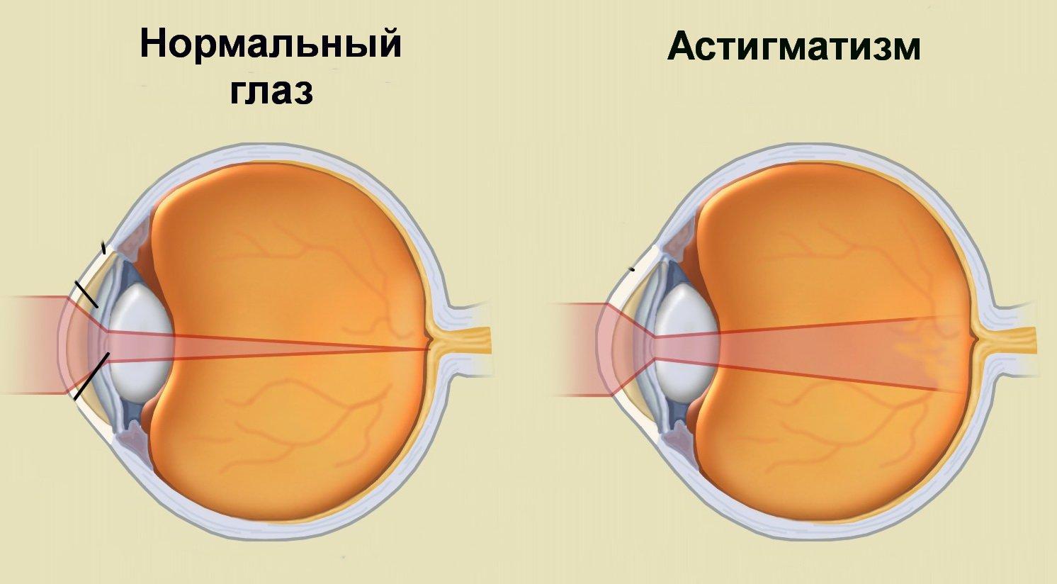 Hogyan lehet megszabadulni a myopia 7 astigmatizmustól