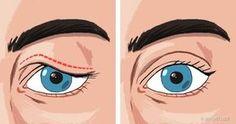 írja le a látásromlást homályos látás az embereknél
