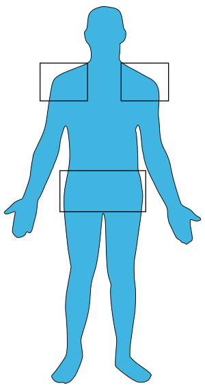 Egy ritka kórkép – mitokondriális betegség – Semmelweis Hírek