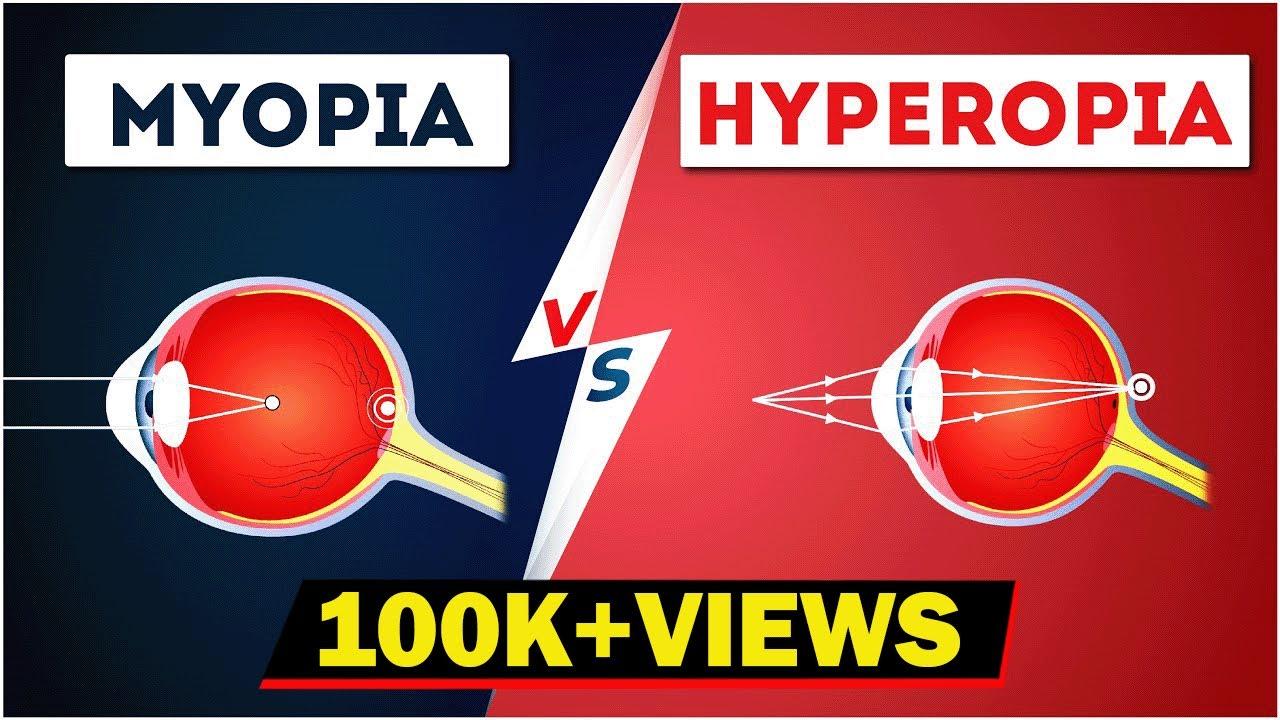 szem myopia képzése