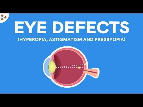 hyperopia gyakorlatok a látás javítására
