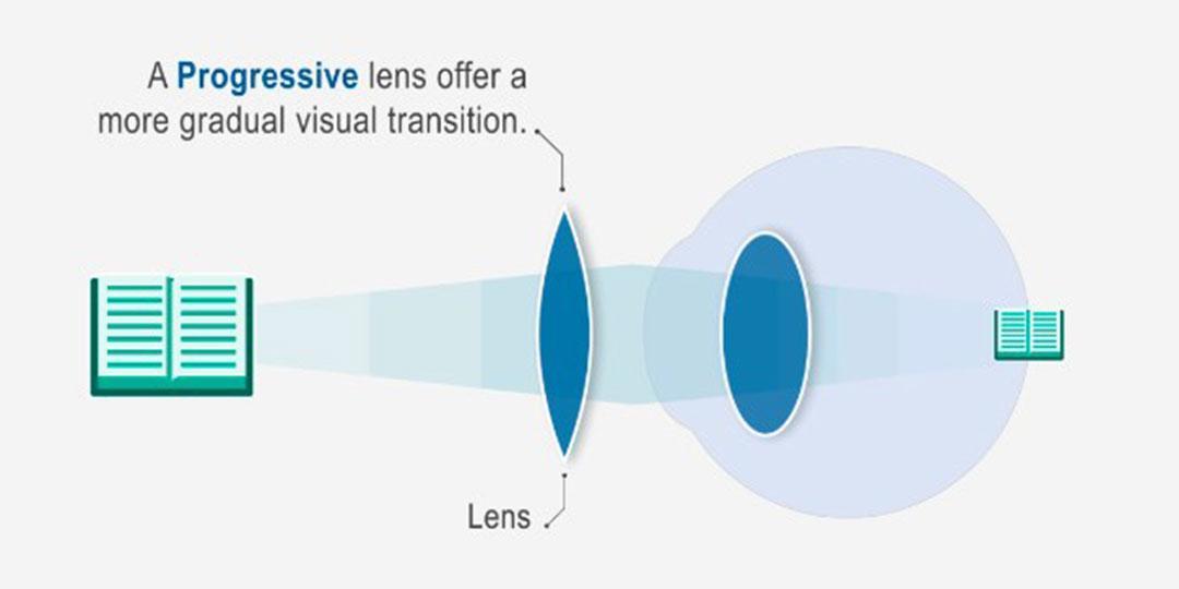 a látás egy év alatt csökkent helyreáll-e a látás, ha távollátó