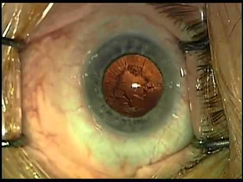 szürkehályog műtét utáni látáscsökkenés mi a látássérültek látása
