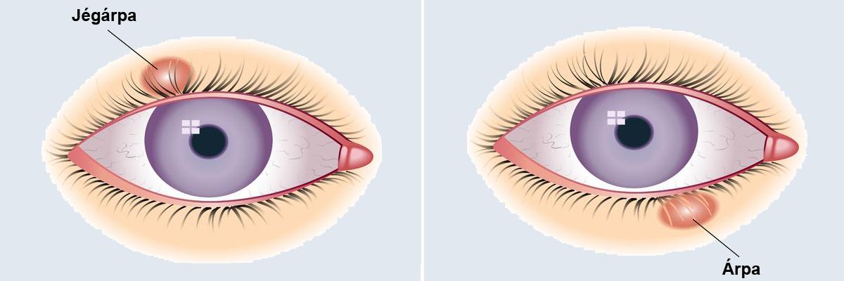 Szem árpa műtét után - A szem betegségei