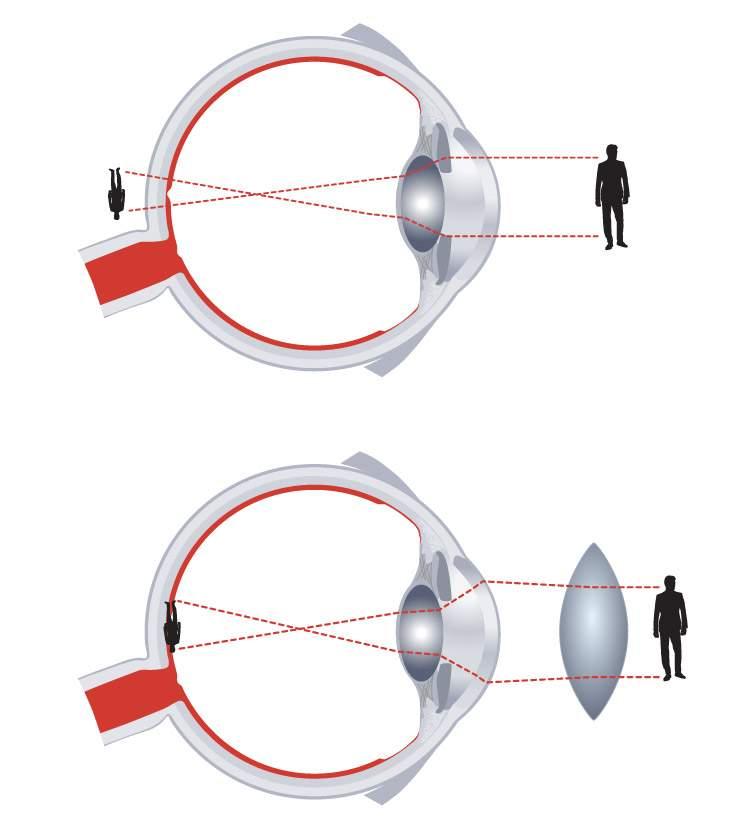 szemgyakorlatok a rövidlátás kezelésére az agy és a látás kapcsolata