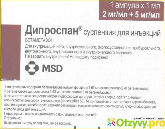 A könyökcsukló blokkolása a Diprospan által - Csukló