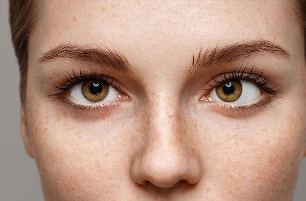 Káprázó szem, különböző színlátás a két szemen? - A szem betegségei