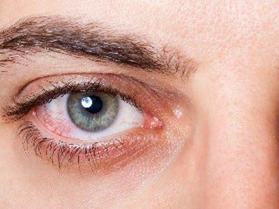 jó szem a jobb látáshoz alvás után romolhat a látás