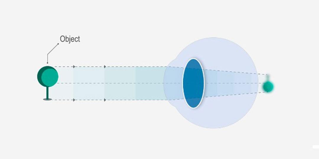 a látás helyreállítása a legjobb módszer látás mínusz 0 2 ami azt jelenti