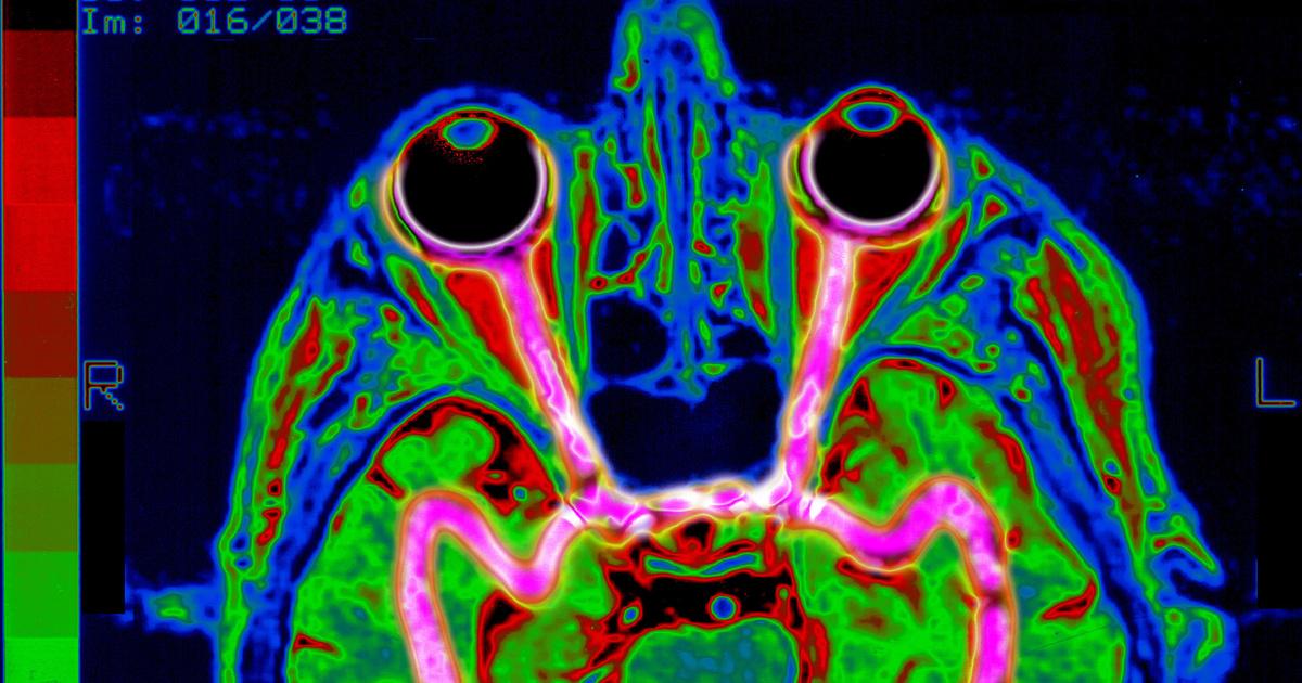 agy és látás helyreállítása