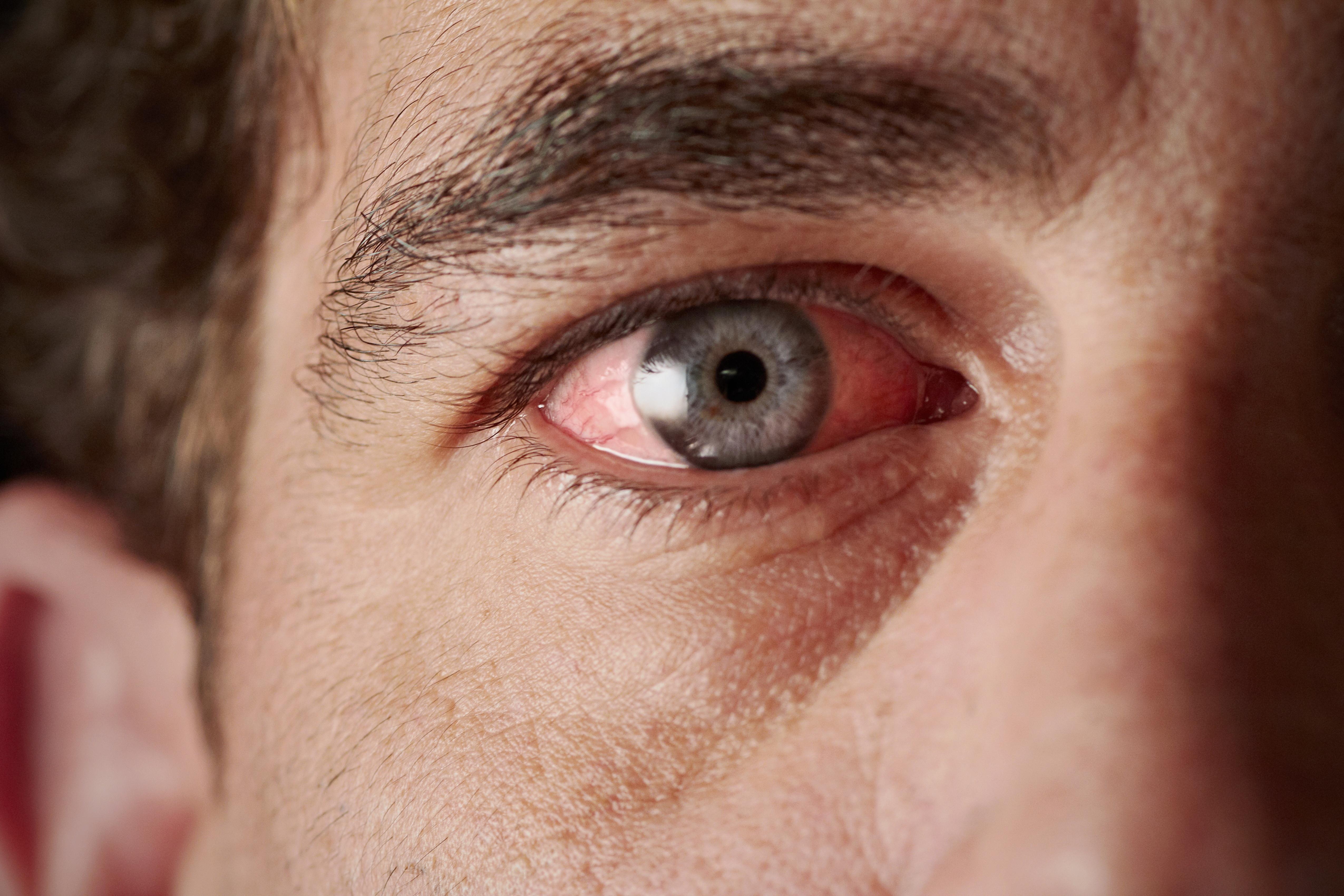 Szemfenéki érelzáródások | Szemészeti Klinika