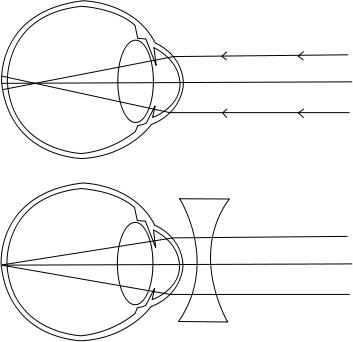 Akupunktúrás pontok rövidlátással