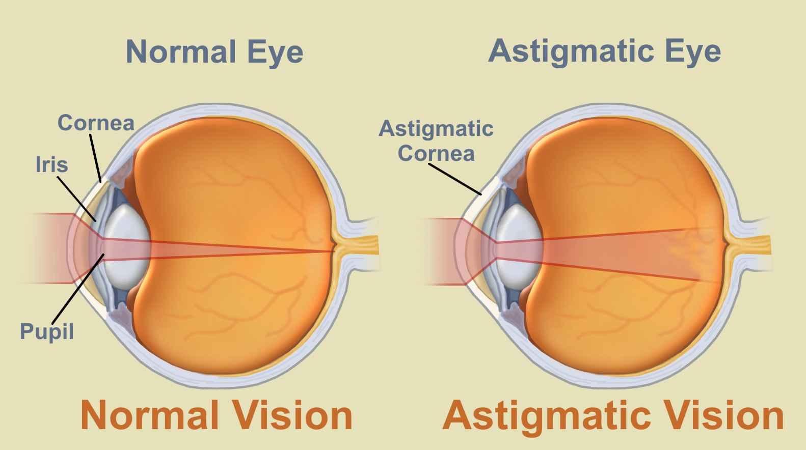 A szem-asztigmatizmus típusai: jellemzők, diagnózis, korrekció és kezelés - Látvány - 2020