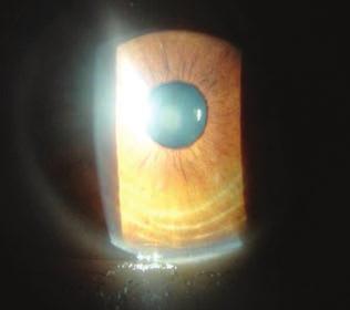 hogy a gonorrhoea hogyan befolyásolja a látást